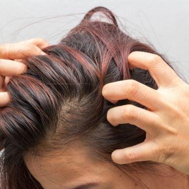 Penyebab, cara mencegah, dan cara mengatasi kulit kepala kering