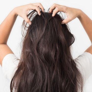 Cara Mengatasi Psoriasis di Kulit Kepala dengan Tepat