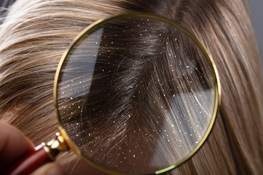 Perbedaan Ketombe Dan Psoriasis Penyebab Kulit Kepala Gatal Dan Kering