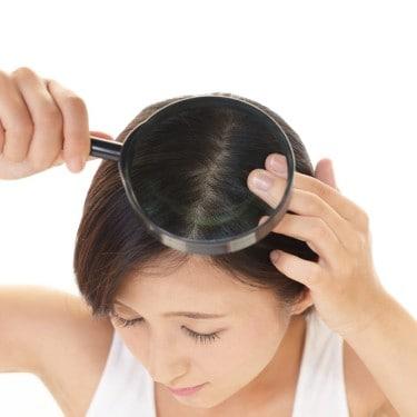 Tak Tahan Rambut Gatal Akibat Ketombe Berkerak? Ini Solusinya