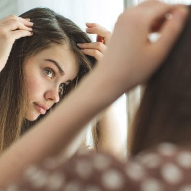 Waspadai Penyakit Kulit di Kulit Kepala, Kenali Penyebabnya